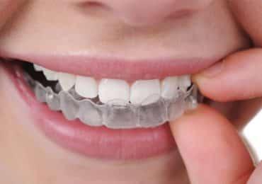 tratamiento-ortodoncia-estetica-meddicus