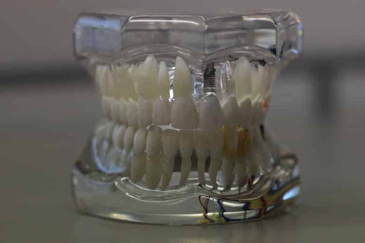implantes-dentales-meddicus-torrijos